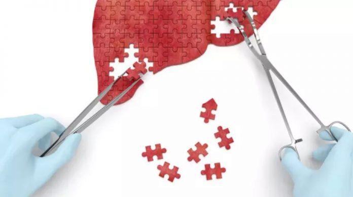 Jutaan Orang Tak Tahu Dirinya Terinfeksi Hepatitis
